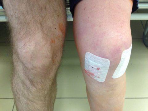 На картинке представлены колени пациента. На суставную ткань левого была проведена артроскопическая процедура. Пациенту предстоит реабилитационный, восстановительный период.
