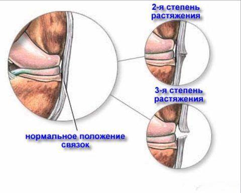 На картинке представлены нарушения связок локтя в зависимости от степени повреждения.