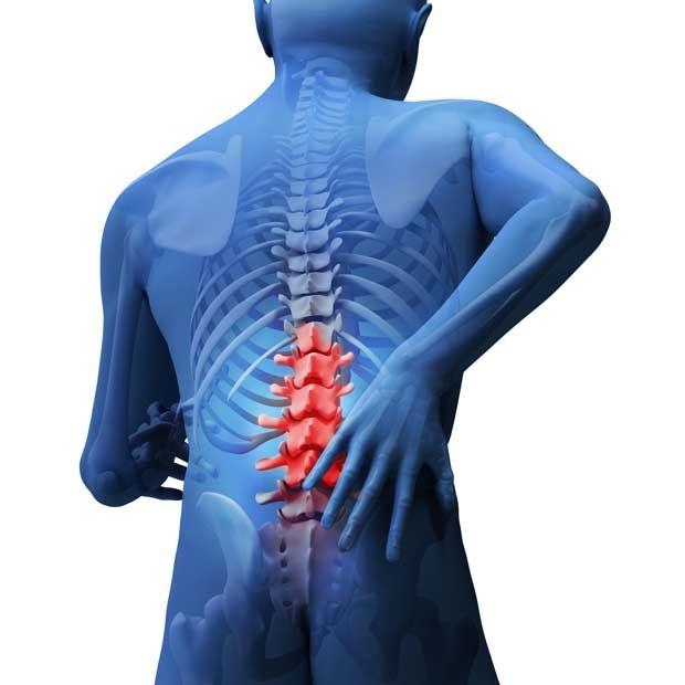 Рак спинного мозга: симптомы, причины и методы лечения опасного заболевания