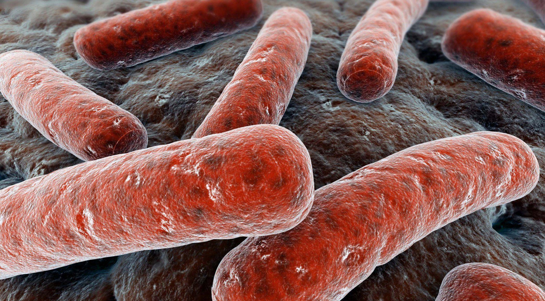 Туберкулез костей – механизм развития, признаки, методы лечения