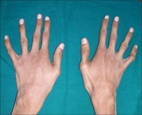 Первая степень изменения фаланг пальцев рук.