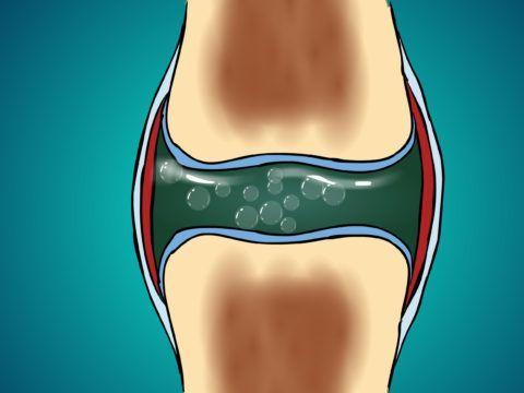 Похрустывать сочленения могут из-за обилия пузырьков газа в суставной жидкости.