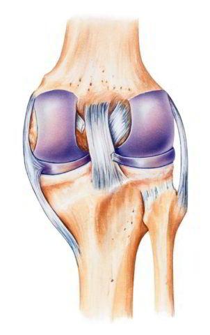 Повреждение задней крестообразной связки колена.