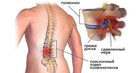 При сильном дискомфорте в области спины и нарушении чувствительности разрабатывается максимально эффективная схема терапии традиционными методами.