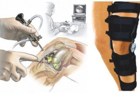 Процесс проведения оперативного вмешательства и наложение иммобилизационной шины.