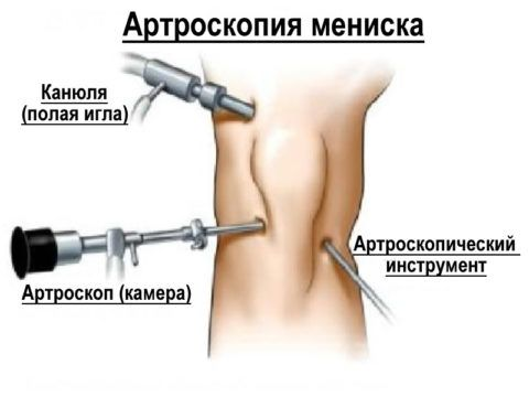 Проведение артроскопической процедуры при лечении мениска колена.