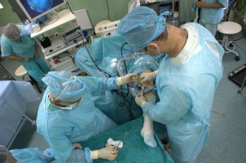 Проведение вмешательства с использованием артроскопа в операционной хирургического отделения.