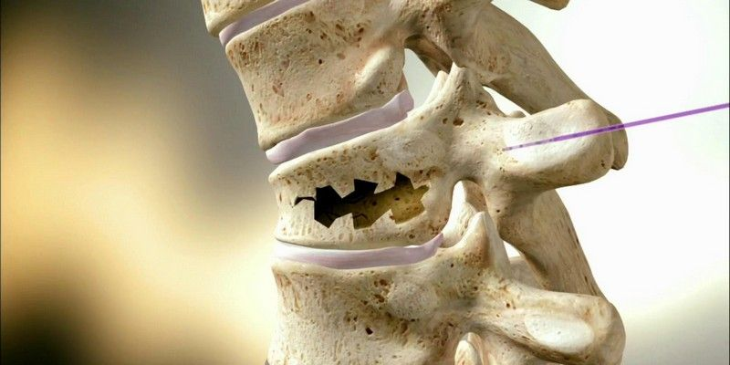 Лечение и реабилитация перелома позвоночника: лучшие терапевтические методы