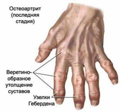 Руки пациента с артритом на крайней стадии заболевания.
