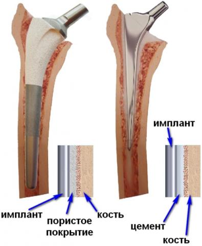 Слева – бесцементный способ фиксации протеза, справа – с использованием цемента