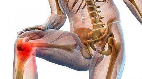Если суставы скрипят и болят при  сгибании или подъеме по лестнице , стоит обратиться к врачу