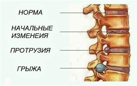 Стадии патологических изменений в межпозвоночных дисках