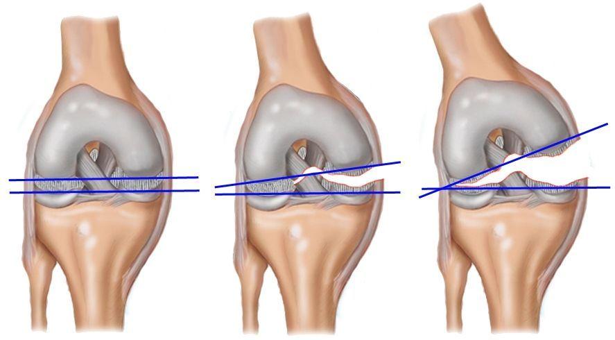 Травма мениска коленного сустава, лечение современными методиками