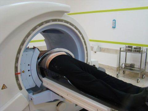 Стереоткасическая радиотерапия