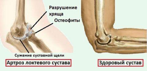 Сужение локтевых суставов