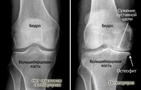 Неравномерное сужение щели суставов часто свидетельствует о серьезном недуге сочленений.