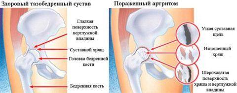 Сужение суставной щели тазобедренного сустава
