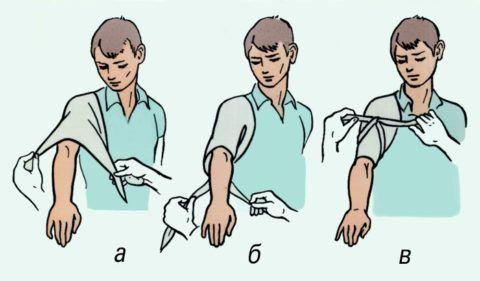 Травма плеча
