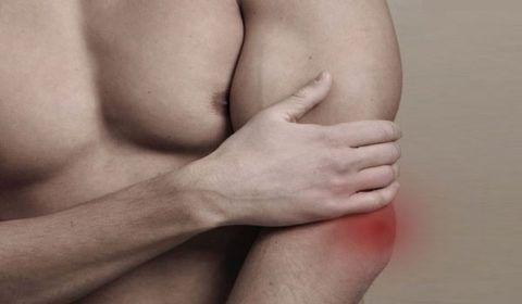 Травматический бурсит
