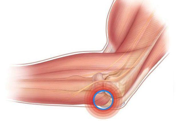 Отчего возникает ушиб локтевого сустава и как можно помочь