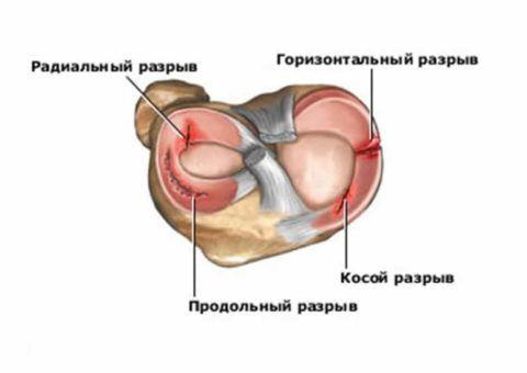 Виды разрыва суставной ткани мениска.