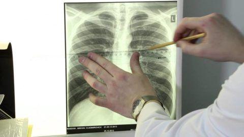 Врачебная диагностика сколиоза