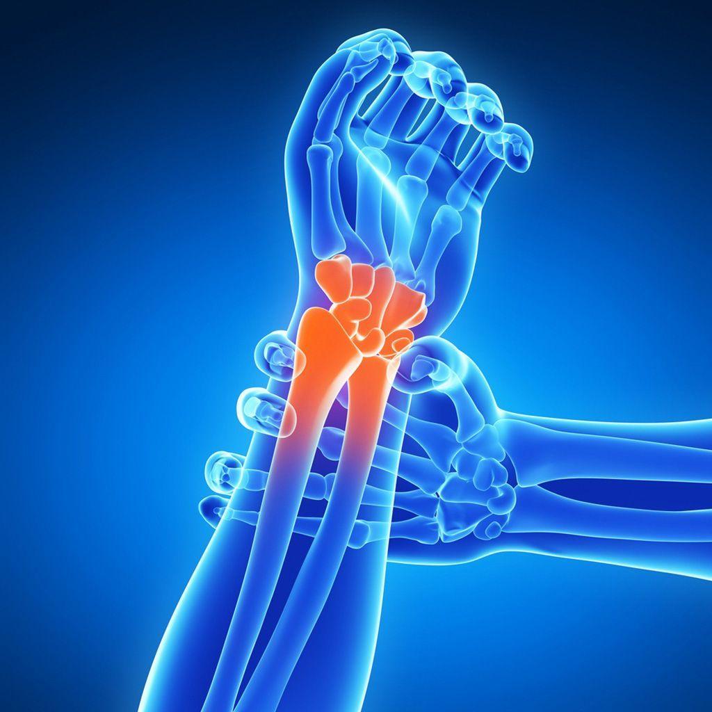 Тендинит лучезапястного сустава – признаки и методы лечения