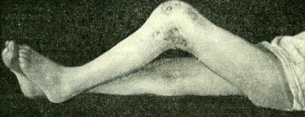 Образование свищей в области сустава