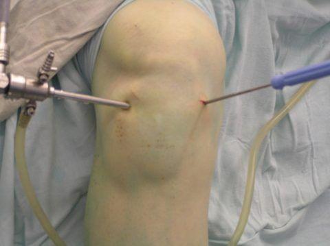 Артроскопический метод лечения хрящевой и суставной ткани колена.