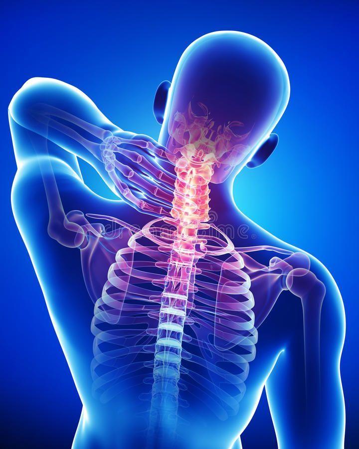 Остеохондроз позвоночника: как победить боль в спине