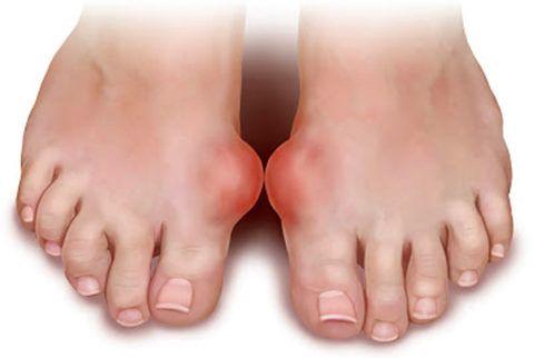 Деформирующее заболевание, влекущее за собой серьёзные последствия в видоизменении мягкой и хрящевой ткани.
