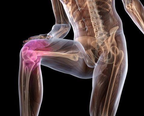 Дистрофические и дегенеративные изменения, на фото остеоартроз