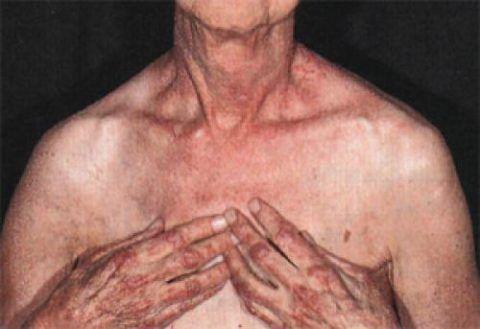 Для дерматомиозита характерна также кожная симптоматика