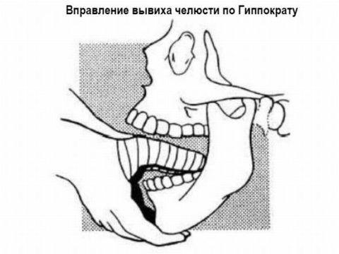 Физическое воздействие на челюсти при вправлении специалистом.