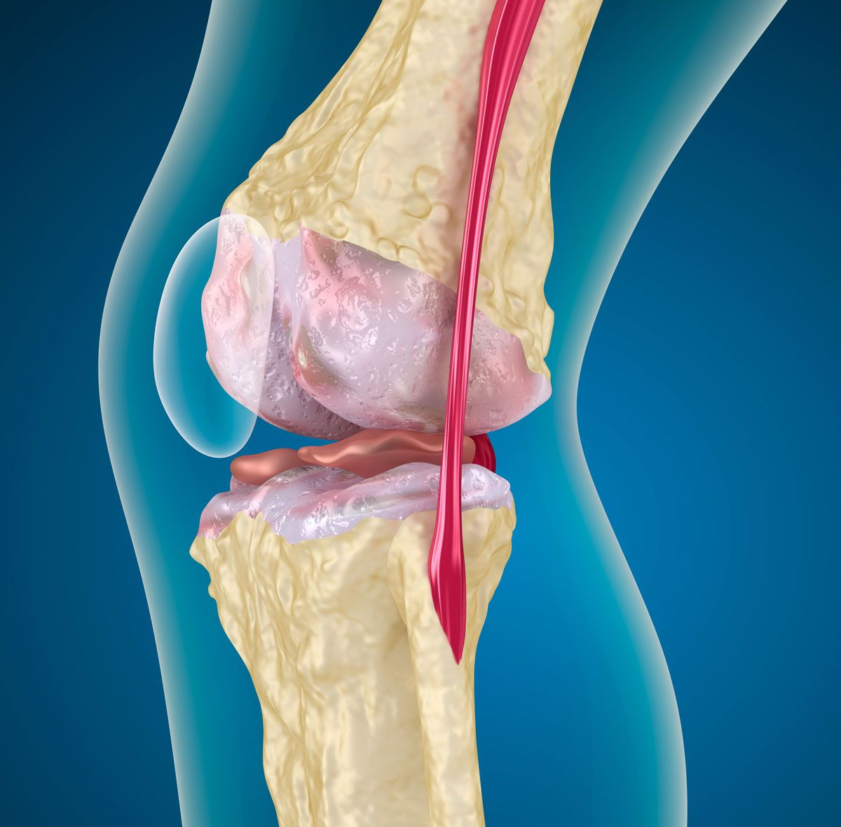 Заболевания коленного сустава: частые и редкие патологии, их симптомы и лечение