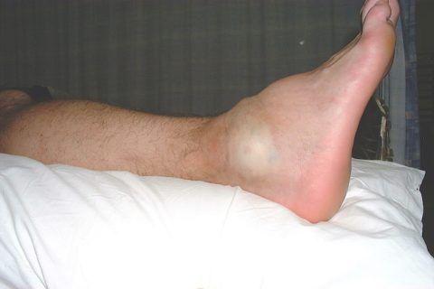 Лечение опухоли голеностопного сустава в условиях стационара.