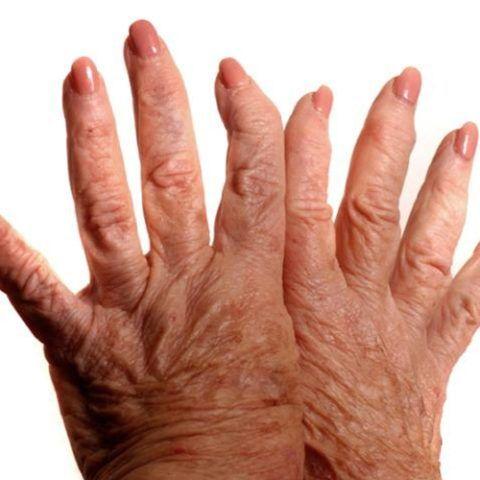 На фото остеоартроз