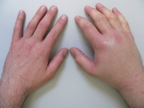 На фото отчётливо видно новообразования на суставной ткани между фаланг пальцев рук с отёком мягких тканей и гиперемией кожных покровов.