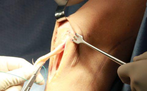 На фото показан разрез кожных покровов и сшивание разорванных связок саморассасывающейся нитью – кетгутом.