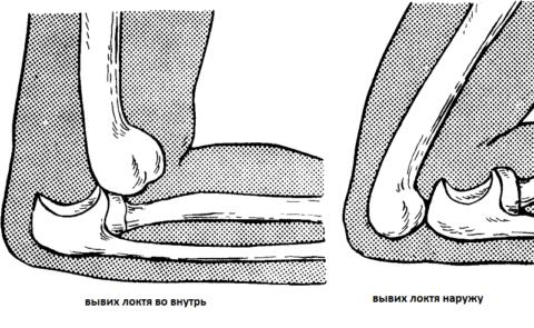 Что такое вывихи суставов и их симптомы и лечение