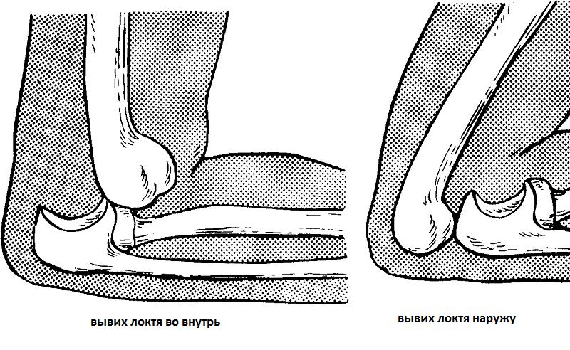 Вывих сустава, симптомы, течение и лечение распространённых травм