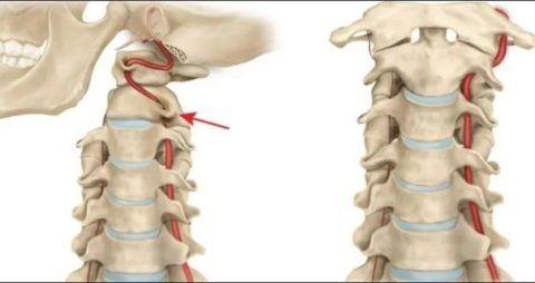 Недоразвитие артерии может привести к серьезным проблемам