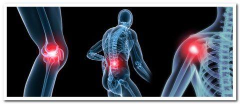 Почему болит колено ночью в состоянии покоя, возможные причины ноющей боли