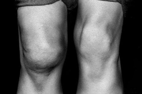 О внутрисуставном повреждении свидетельствуют такие осложнения, как синовит и гемартроз
