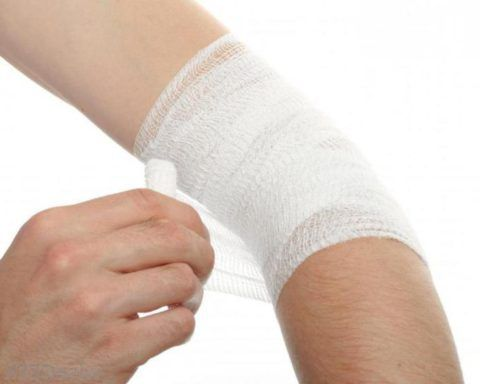 Перевязка руки после оперативного вмешательства.