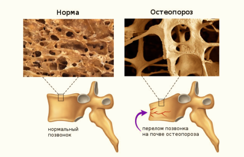 Правильно подобранные физические нагрузки помогут остановить истончение костей