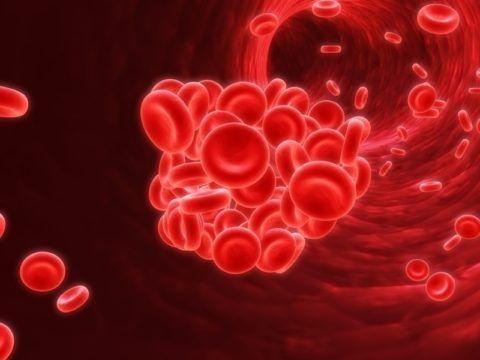 При наличии факторов риска может произойти закупорка артерии тромбом