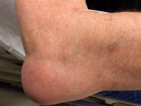 Проявление воспалительного процесса локтя у пациента.