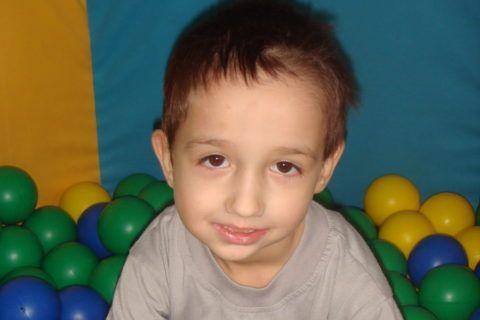 Ребёнок со смещением нижней челюсти.