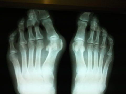 Рентгенологический снимок пальцев обеих ног.